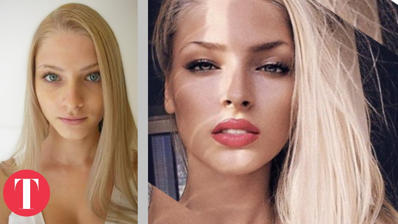 10 Shocking Pictures Of Instagram Models Before Plastic
